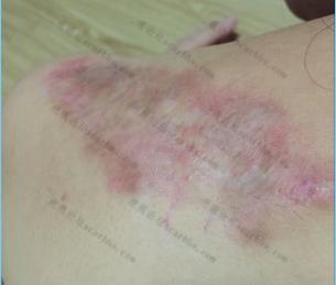 肩膀疤痕增生,上海第六人民医院注射平复后锶90治疗持续更新中。。。7-疤痕体质图片_疤痕疙瘩图片-中国疤痕论坛