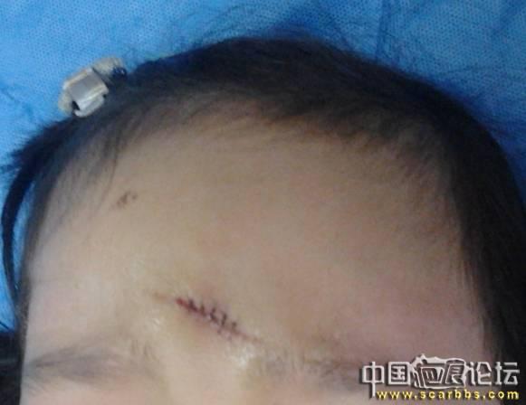 5岁宝宝摔伤额头第48天,芭克使用13天,首页整理了护理过程!