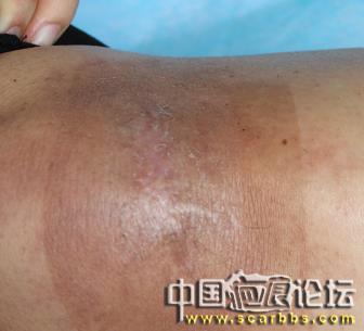 四肢疤痕疙瘩常用的治疗方法