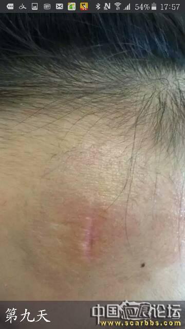 孩子额头受伤凹疤,九个多月后记录下恢复情况
