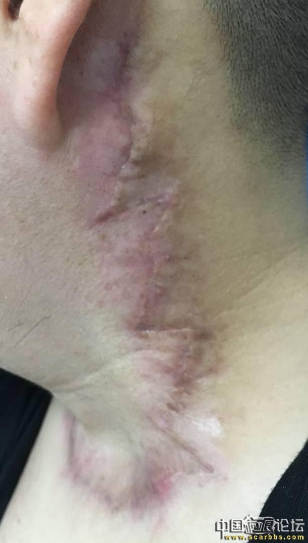 很感谢陈立彬医生帮我做的疤痕疙瘩手术。