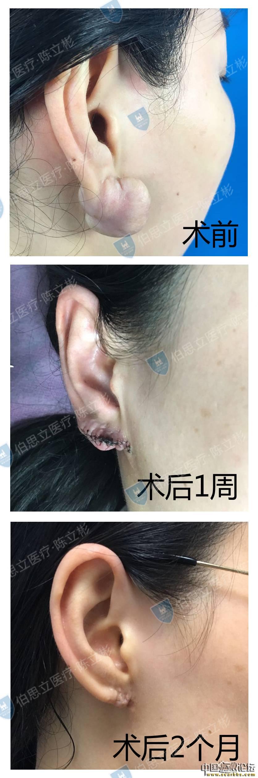 耳部疤痕疙瘩治疗术后2个月反馈