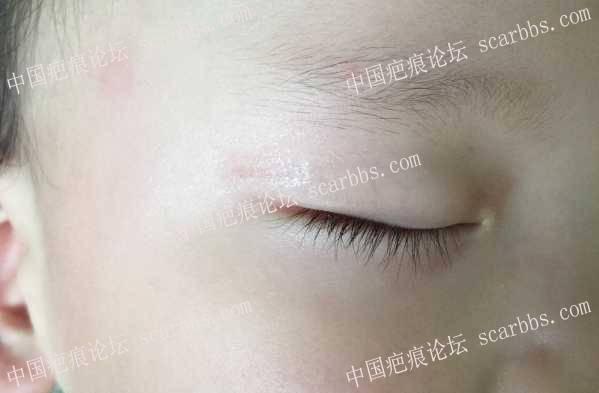 一岁多宝宝眼皮磕伤五个月多,从严重凹陷至浅印,继续努力