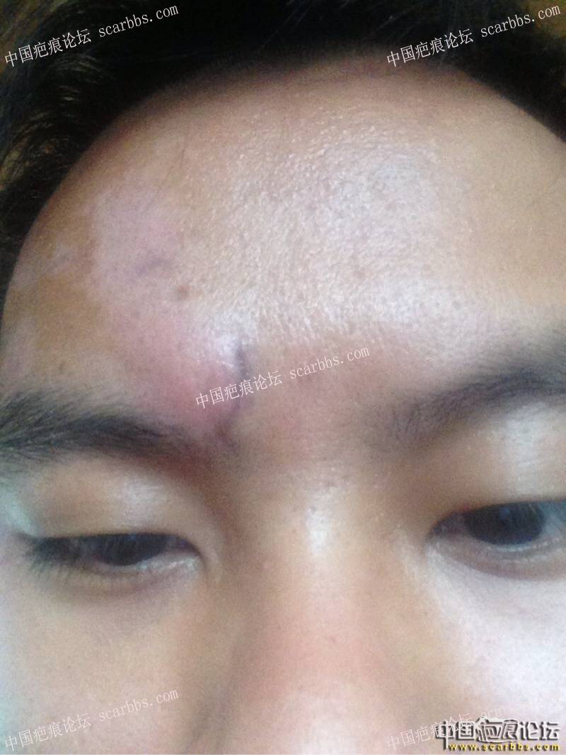 1.9厘米疤痕切除-分享所有心得经历与手术