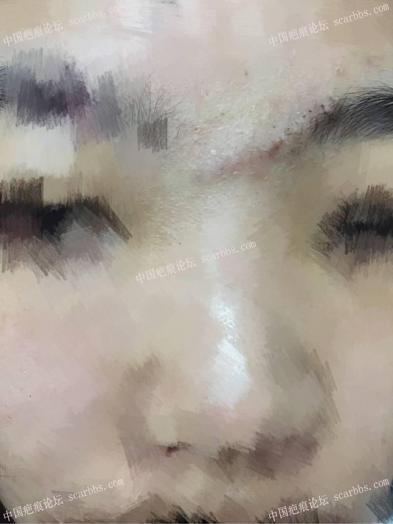 眉心凹陷疤痕做了切缝手术大家看效果!