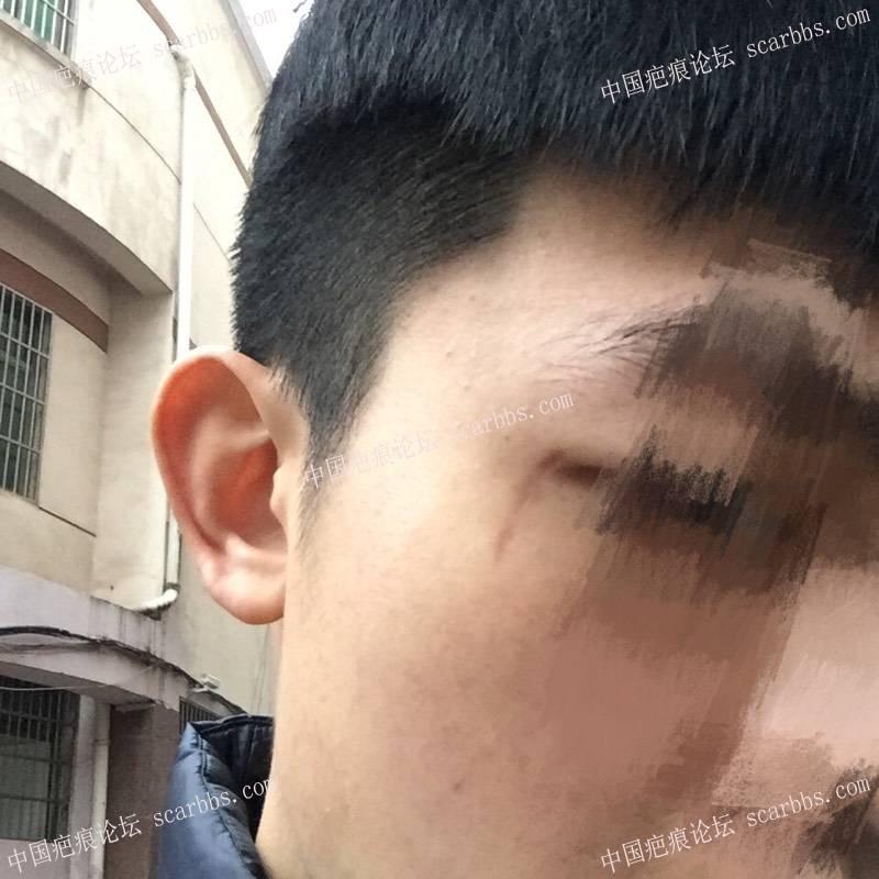 一年的眼角疤痕了还是红怎么办