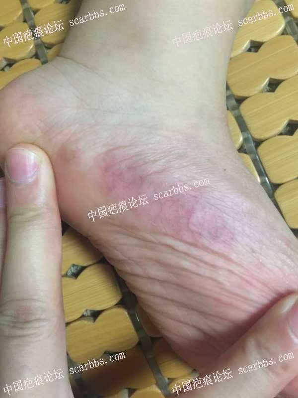 脚抗疤一年多快两年,后期出现红血丝怎么护理?