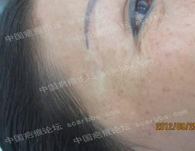 如何才能避免疤痕色素缺失的发生?[tag]