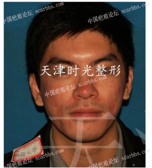 脸部+鼻部痘坑  激光+切缝