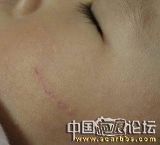 宝宝的小脸被爸爸抓破形成了凹疤~持续报告中