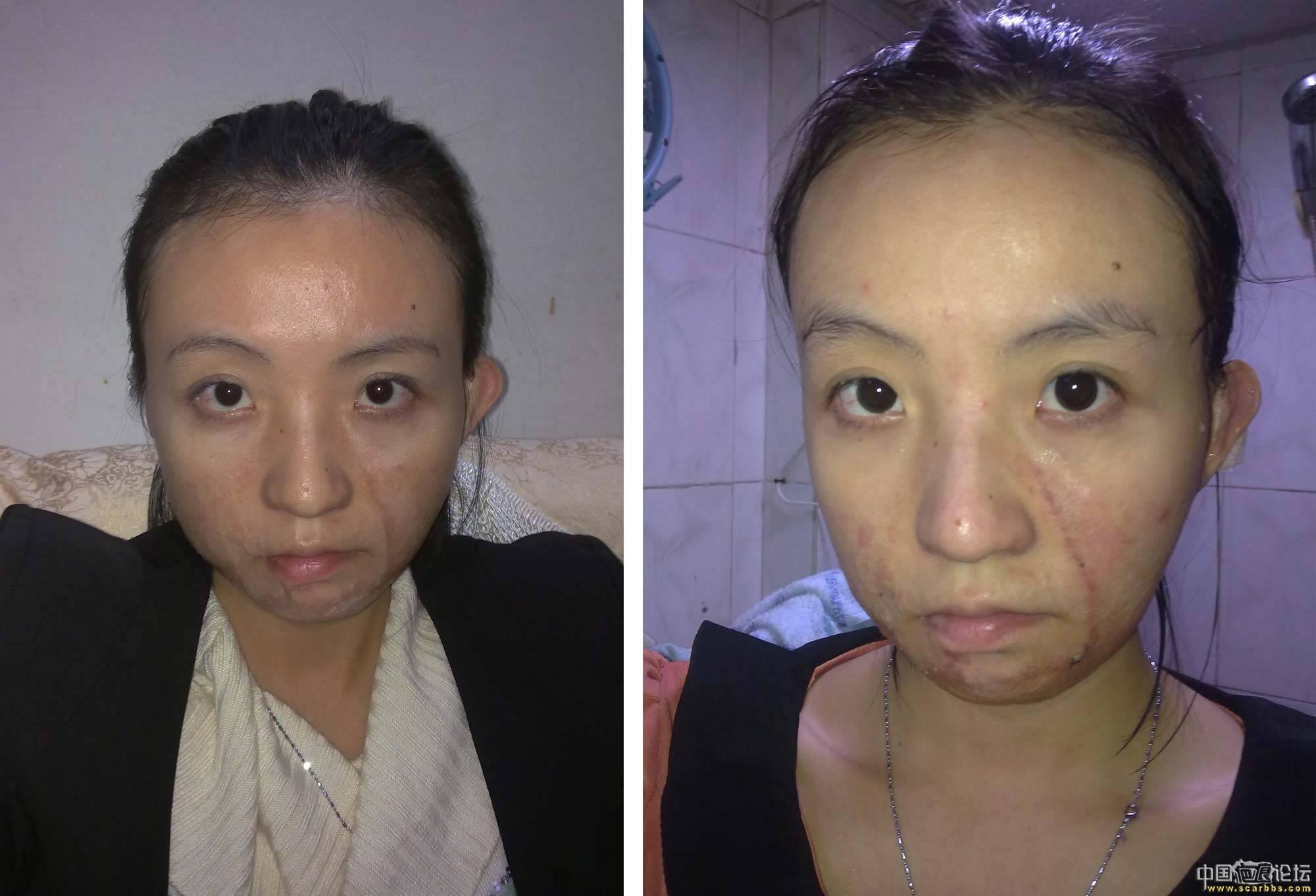 去韩国做完三处面部疤痕切除手术
