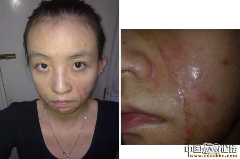 去韩国做完三处面部疤痕切除手术11-疤痕体质图片_疤痕疙瘩图片-中国疤痕论坛