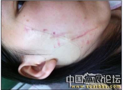 从大疤到小疤的全过程86-疤痕体质图片_疤痕疙瘩图片-中国疤痕论坛