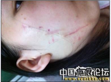 从大疤到小疤的全过程
