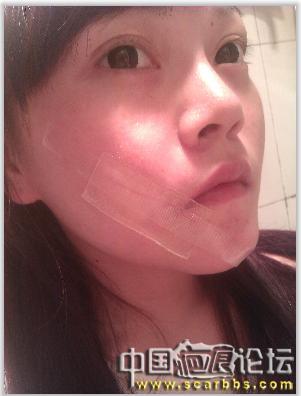 脸上的疤痕,确实很要命的说,上个月做的切除术,跟吧友们分享