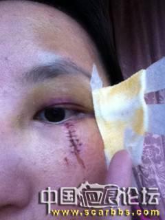 芭克疗伤日记51-疤痕体质图片_疤痕疙瘩图片-中国疤痕论坛