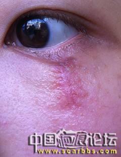 芭克疗伤日记40-疤痕体质图片_疤痕疙瘩图片-中国疤痕论坛