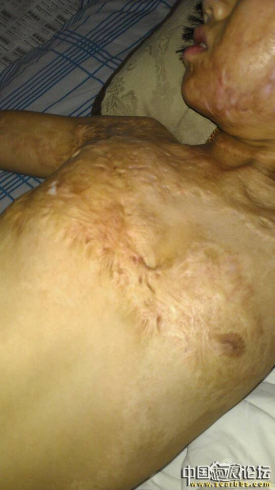 女儿2009年脸部,胸部被火烧伤,现疤痕难除,求帮助!
