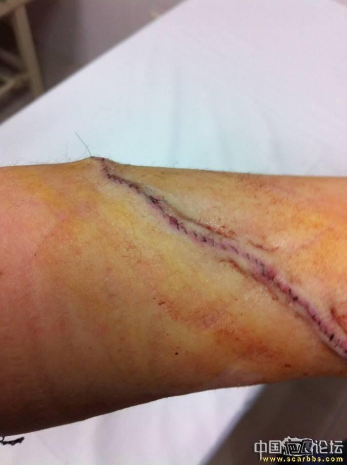 手前臂的疤痕切除缝合(不定期更新,更新至5月2日) 激光,纹身,疤痕切除,