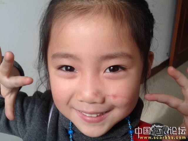 女儿鼻子被玻璃割透,脸部伤至见骨头(永远的痛)
