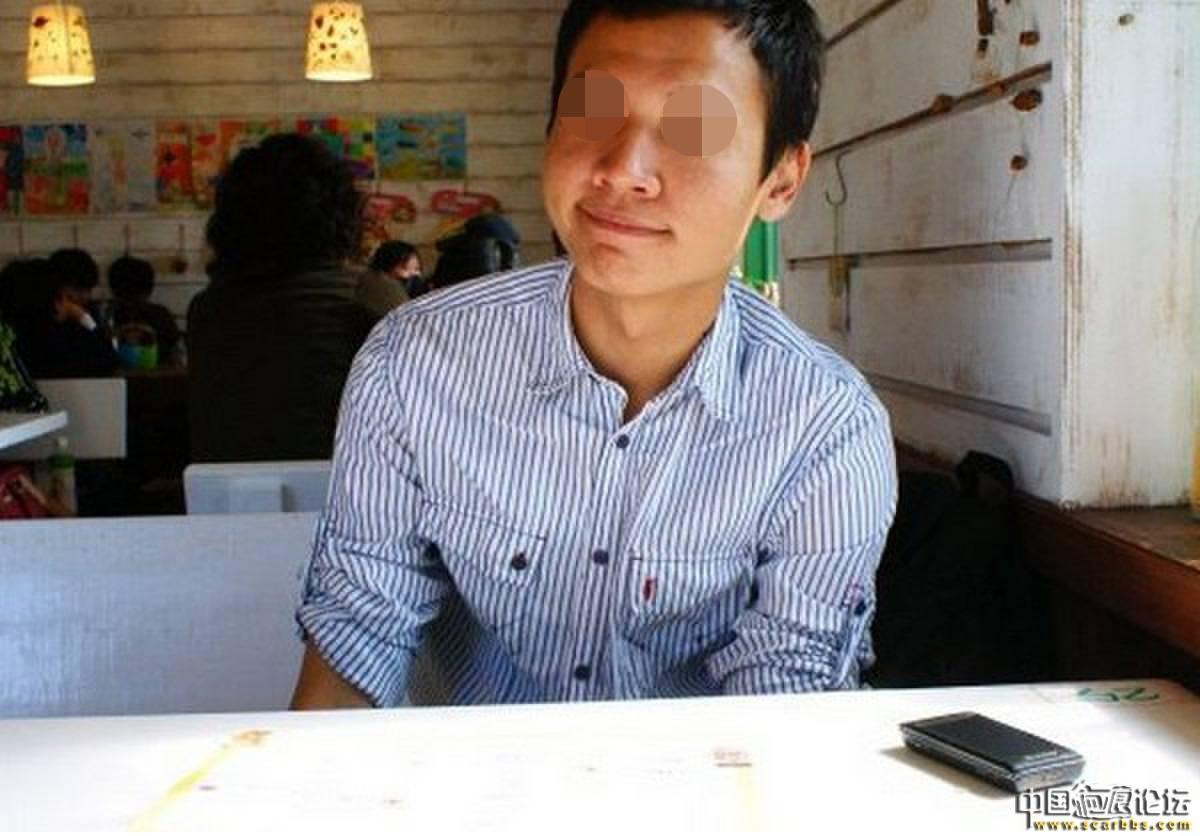 痘坑(问题肌肤)综合养护(极速飞针+飞梭镭射+单点修复+居家照顾)50-疤痕体质图片_疤痕疙瘩图片-中国疤痕论坛