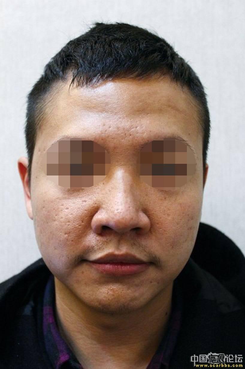 痘坑(问题肌肤)综合养护(极速飞针+飞梭镭射+单点修复+居家照顾)11-疤痕体质图片_疤痕疙瘩图片-中国疤痕论坛