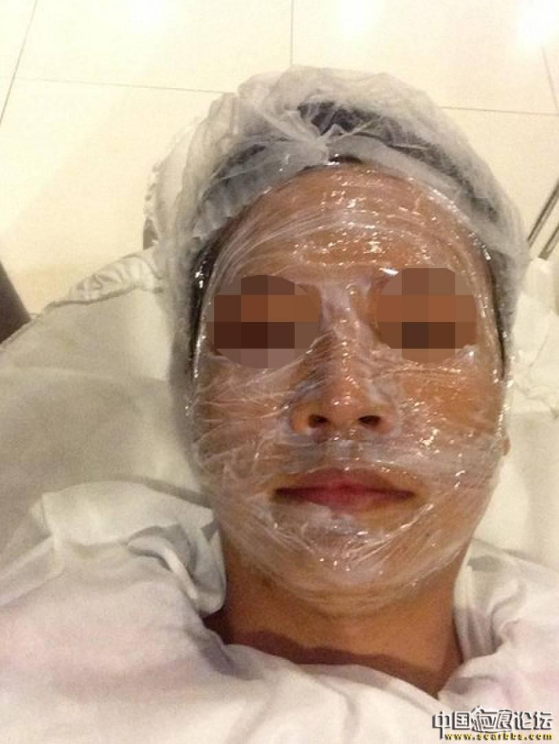 痘坑(问题肌肤)综合养护(极速飞针+飞梭镭射+单点修复+居家照顾)98-疤痕体质图片_疤痕疙瘩图片-中国疤痕论坛