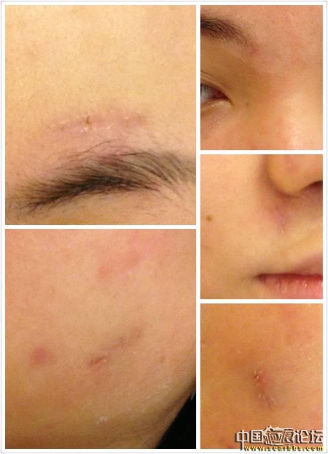 疤痕切除手術 (8/3更新圖片)27-疤痕体质图片_疤痕疙瘩图片-中国疤痕论坛