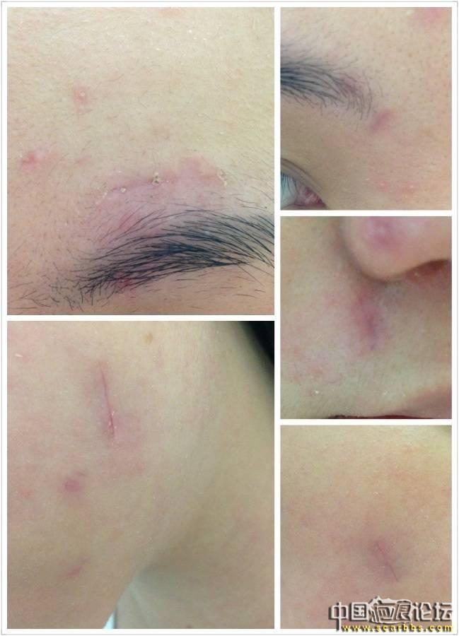 疤痕切除手術 (8/3更新圖片)47-疤痕体质图片_疤痕疙瘩图片-中国疤痕论坛