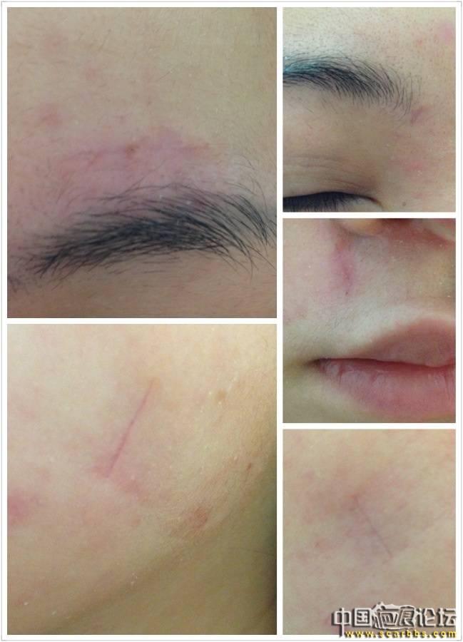 疤痕切除手術 (8/3更新圖片)61-疤痕体质图片_疤痕疙瘩图片-中国疤痕论坛
