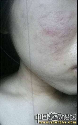 细胞移植治疗痘坑已经注射完三次了,静待细胞生长 疤痕治疗,疤痕修复,青春痘,疤痕图片,实验品,