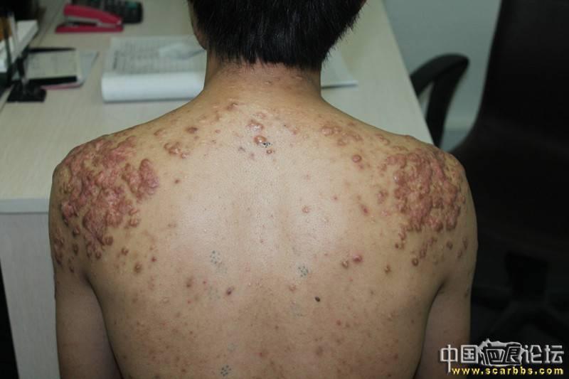 北京疤康治疗过程分享,希望对你们有所帮助90-疤痕体质图片_疤痕疙瘩图片-中国疤痕论坛