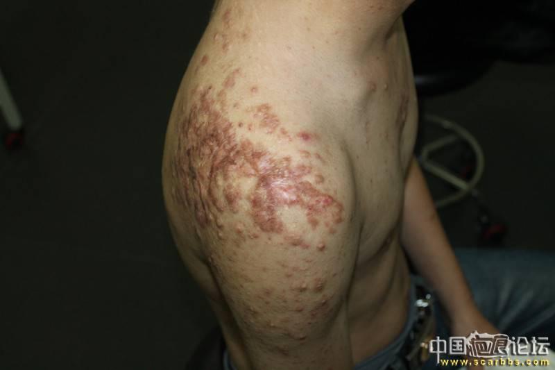 北京疤康治疗过程分享,希望对你们有所帮助18-疤痕体质图片_疤痕疙瘩图片-中国疤痕论坛