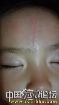 3岁8个月女孩撞伤额头,缝5针,坚伤 额头受伤缝针