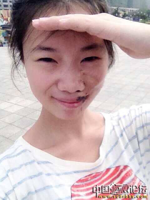 扩张器治疗黑色素毛痣大面积植皮疤痕75-疤痕体质图片_疤痕疙瘩图片-中国疤痕论坛
