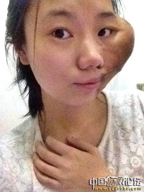 扩张器治疗黑色素毛痣大面积植皮疤痕46-疤痕体质图片_疤痕疙瘩图片-中国疤痕论坛