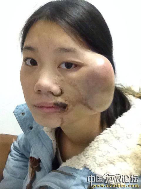 扩张器治疗黑色素毛痣大面积植皮疤痕