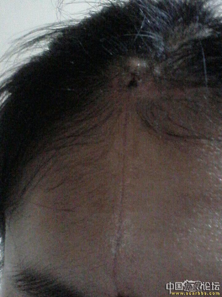 扩张器治疗大面积黑毛痣最终效果(还剩修复)
