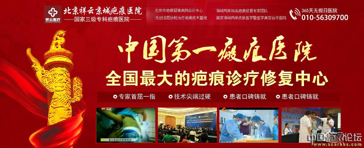 寻找中国最难治的疤痕 获史上最牛的会诊