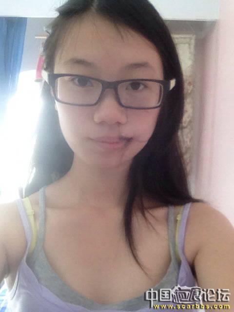 扩张器治疗黑色素毛痣大面积植皮疤痕78-疤痕体质图片_疤痕疙瘩图片-中国疤痕论坛