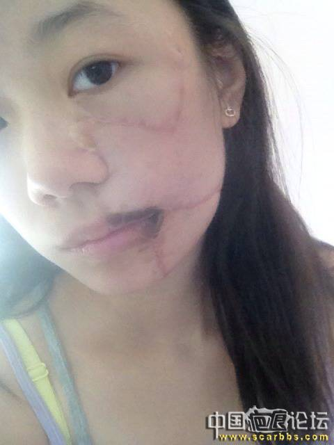扩张器治疗黑色素毛痣大面积植皮疤痕15-疤痕体质图片_疤痕疙瘩图片-中国疤痕论坛