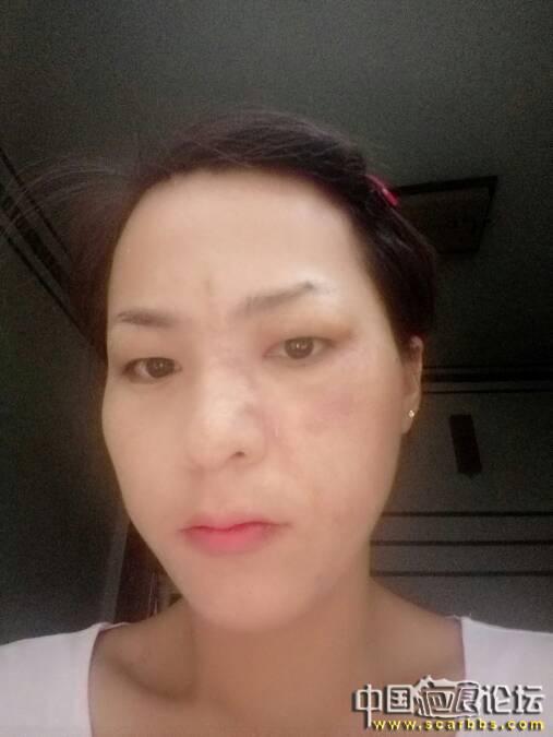 脸部手术疤痕切除之后多久能化妆,