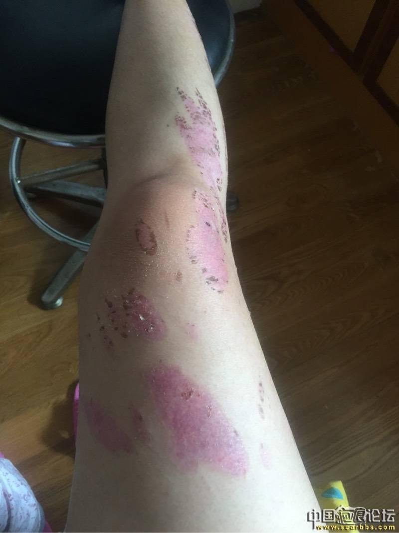 热油烫伤深二度,抗疤效果还不错27-疤痕体质图片_疤痕疙瘩图片-中国疤痕论坛