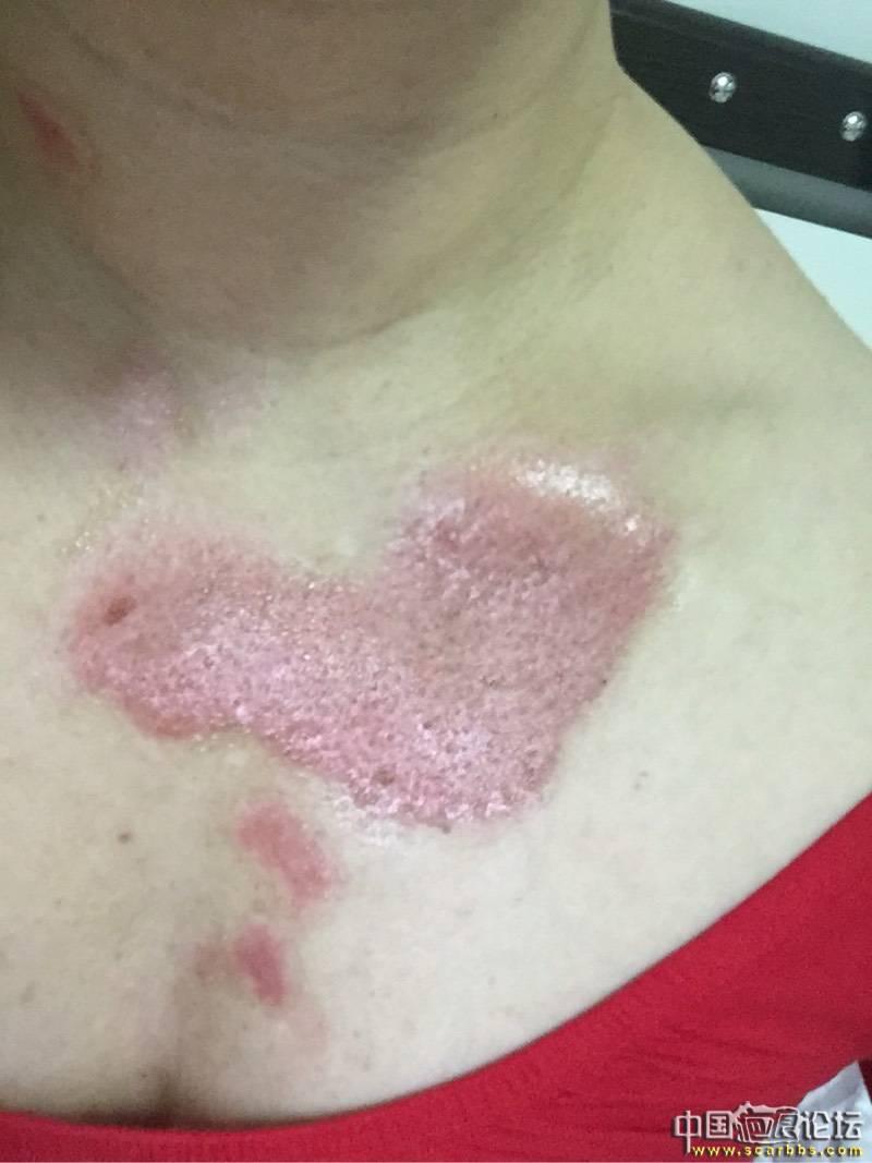 热油烫伤深二度,抗疤效果还不错20-疤痕体质图片_疤痕疙瘩图片-中国疤痕论坛