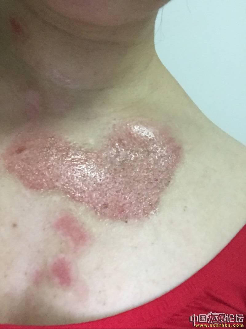 热油烫伤深二度,抗疤效果还不错91-疤痕体质图片_疤痕疙瘩图片-中国疤痕论坛