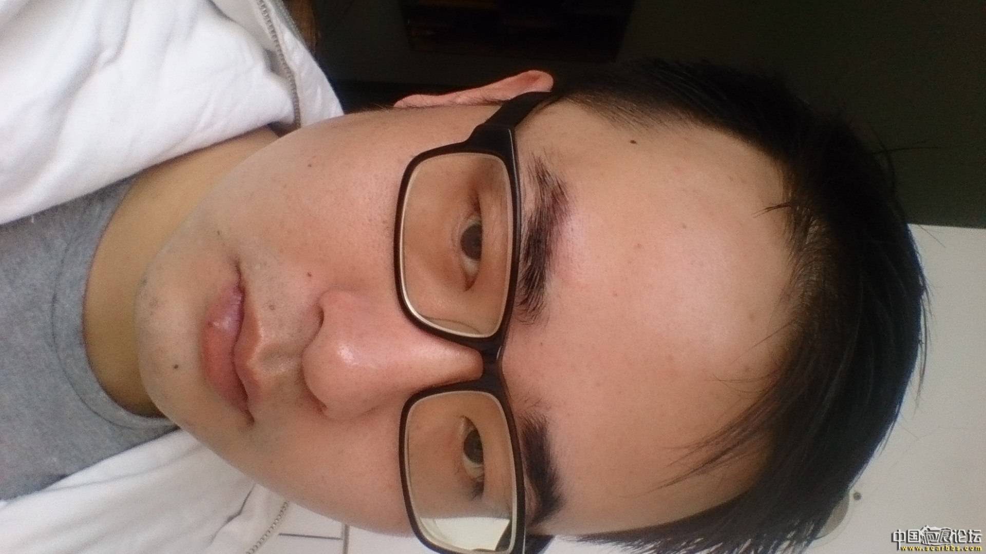 1年零2月,大家看看我恢复得怎样了25-疤痕体质图片_疤痕疙瘩图片-中国疤痕论坛