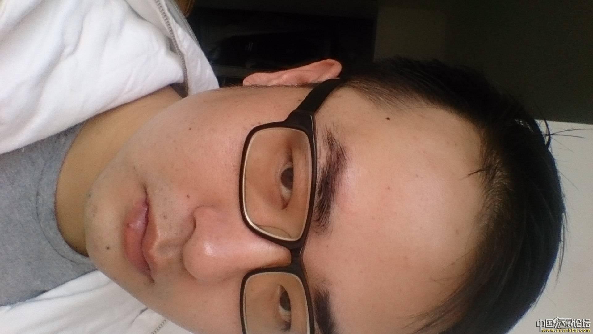 1年零2月,大家看看我恢复得怎样了10-疤痕体质图片_疤痕疙瘩图片-中国疤痕论坛