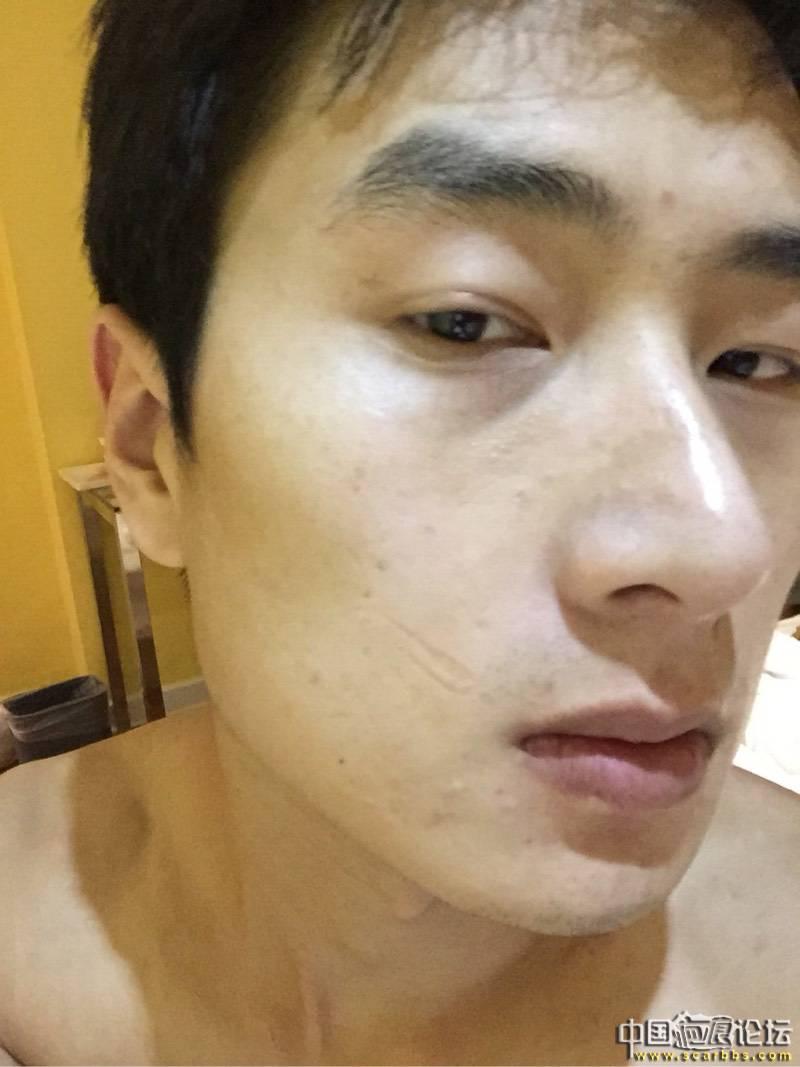 疤痕,改变了我的一生2-疤痕体质图片_疤痕疙瘩图片-中国疤痕论坛