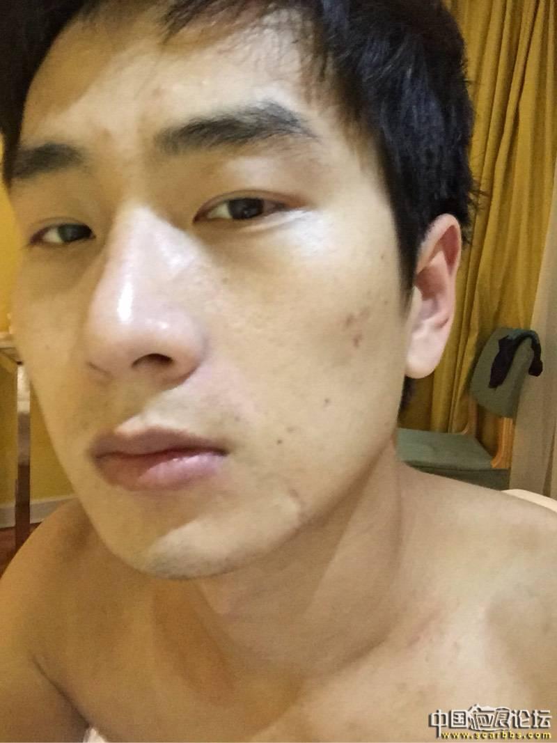 疤痕,改变了我的一生10-疤痕体质图片_疤痕疙瘩图片-中国疤痕论坛