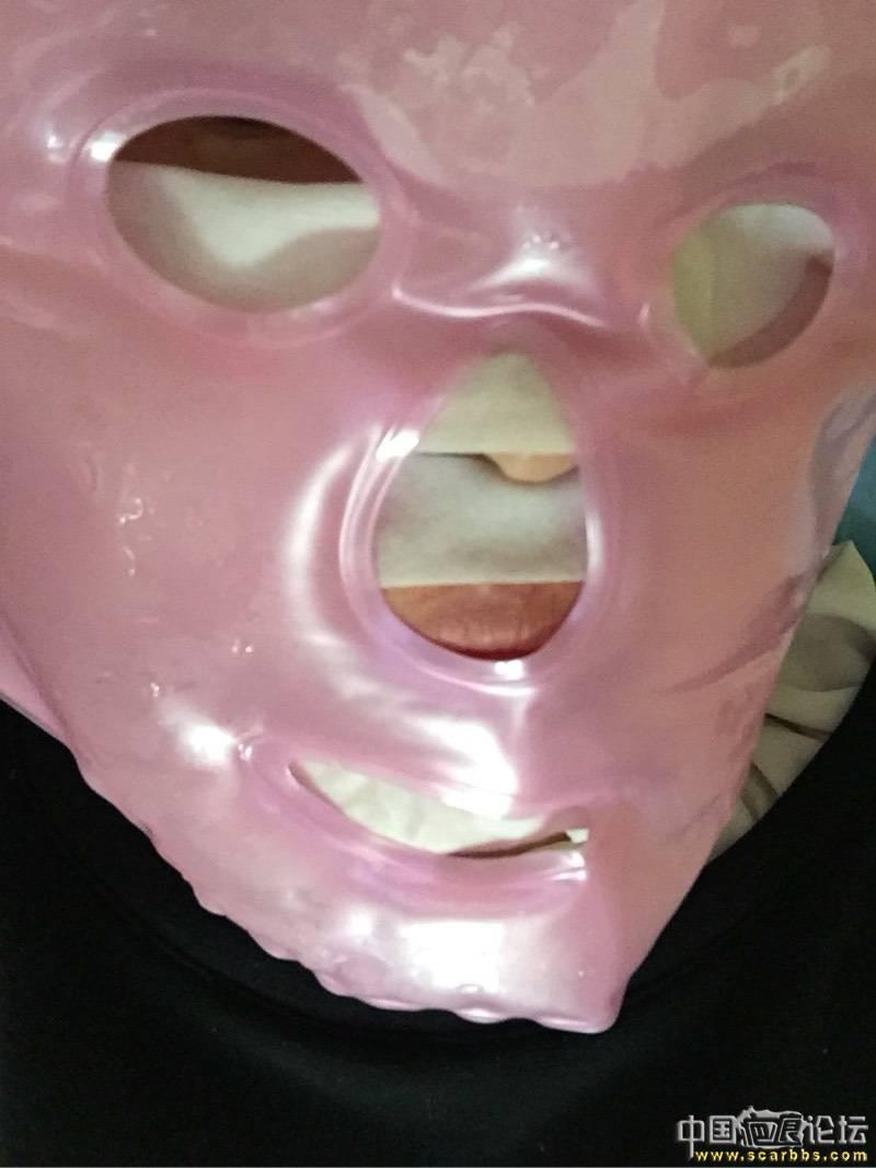 首次切除拆线7周后第一次点阵+磨削26-疤痕体质图片_疤痕疙瘩图片-中国疤痕论坛